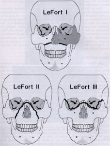 Modified le fort classification
